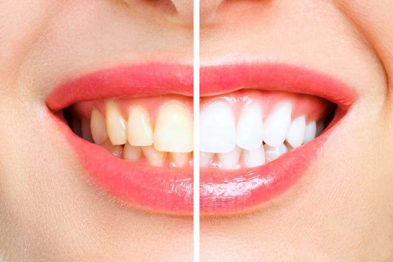 woman-teeth-before-after-whitening-image-symbolizes-stomatology-1